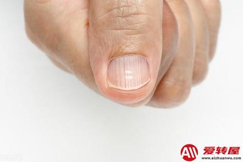 指甲有竖纹是身体的什么信号:指甲有竖纹说明哪不好 第1张
