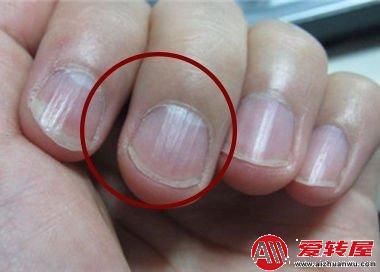 指甲有竖纹是身体的什么信号:指甲有竖纹说明哪不好 第2张